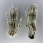 Hand- und Fußkochen eines Menschen (Homo sapiens) (Foto: Thomas Hartmann, Universitätsbibliothek Mainz)